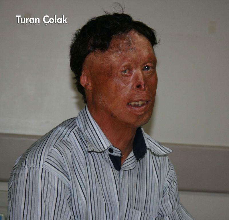 Koray Günter Yüz Çalışması: Türkiye'nin Dördüncü Yüz Nakli Ameliyatı