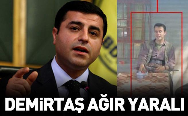 Demirtaş'ın ağabeyi ağır yaralandı iddiası