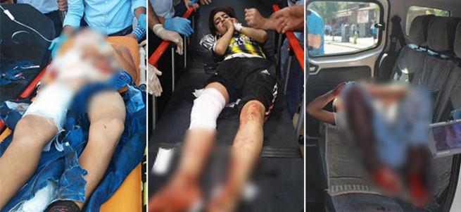 Diyarbakır'da patlama: 2'si ağır 5 çocuk yaralı
