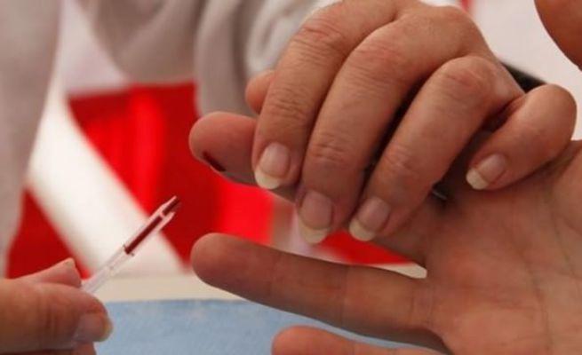 Bilim insanları açıkladı: AIDS'i alt ettik!