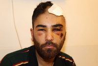 A Turkish man, Burhan İlhan, and his father are the most recent victims of increasing racist attacks in Germany.   The man was reportedly badly beaten with knives and iron sticks by an armed...