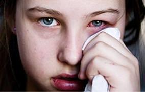 Göz kanlanması hangi hastalığın habercisi?