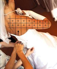 Evliliklerde yeni trend: Düğün estetiği