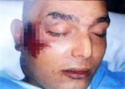 22 ya��nda Türk genci karakolda öldü