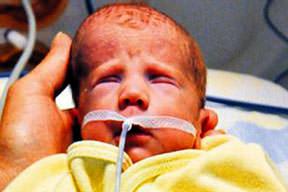 20 günlük bebe�e kalp operasyonu
