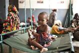 Somali'de son 3 ayda 29 bin çocuk öldü