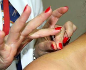 Kulunçlara akupunktur