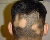 Cerrahpaşada saç hastalıkları birimi açıldı