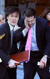Büyükelçi jiletli saldırıya uğradı
