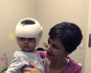 Bebeğinizin kafasını kask düzeltiyor