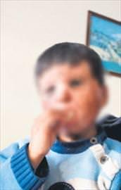 Varil bombasının acı yüzü